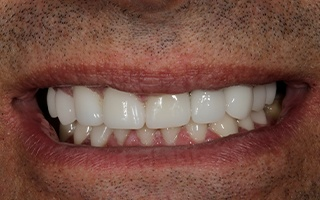 Closeup of man's flawlessly repaired smile