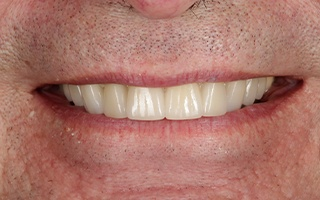 Closeup of older man's healthy smile