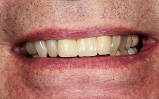 Closeup of older man's discolored front teeth
