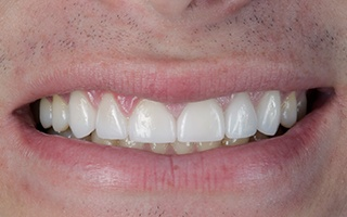 Closeup of man's aligned smile