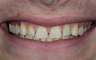 Closeup of man's smile with uneven front teeth