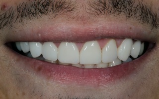 Closeup of closed gap between man's front teeth