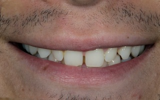 Closeup of gap between man's front teeth