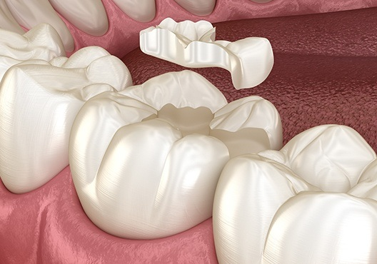Animation of tooth-colored filling process