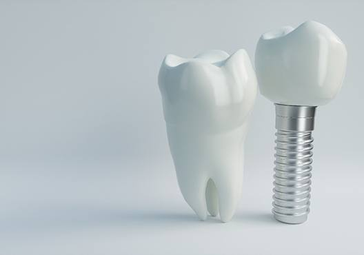 Single dental implant next to tooth on gray background