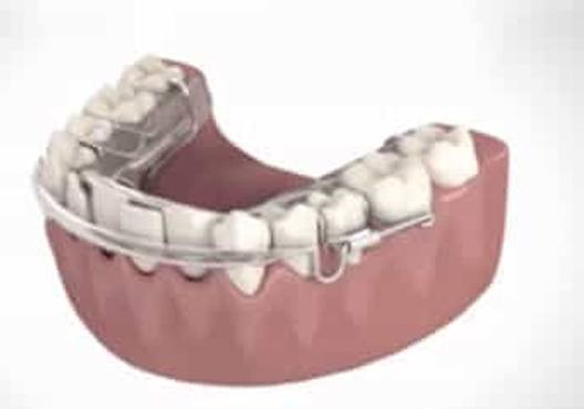 Animation of inman aligner process