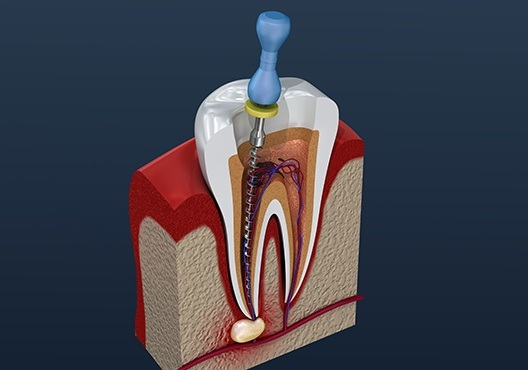 Animation of root canal treatment process