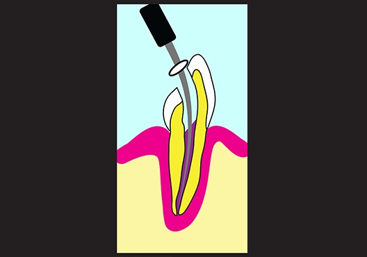 Animation of tooth cleaning and shaping